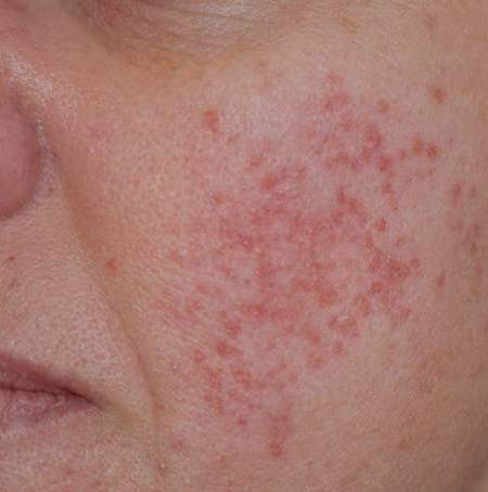 Telangiectasia: Causes, Symptoms & Diagnosis