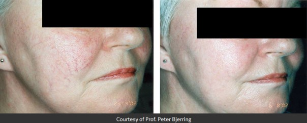 Before and After Two Treatments