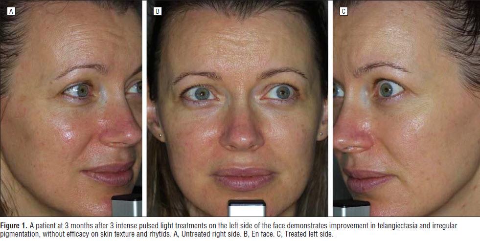 I2pl Treatments Ellipse Lasers