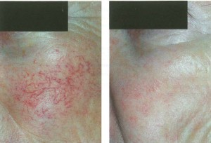 Before and After 4 treatments