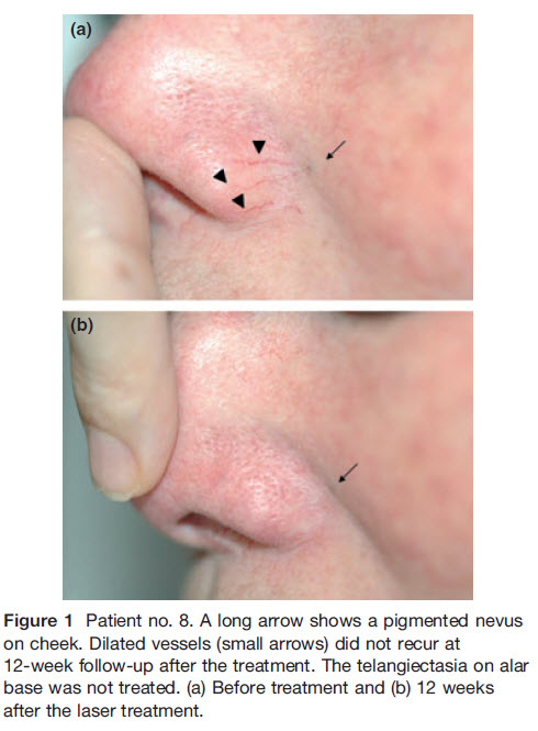 Rather laser removal facial teleangiectasia advise