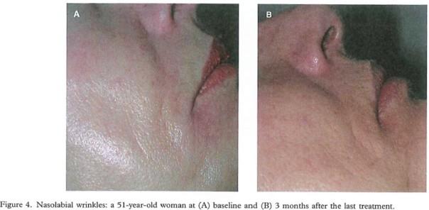 acne9