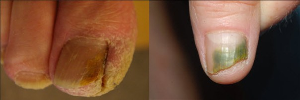 Different appearances of onychomycosis